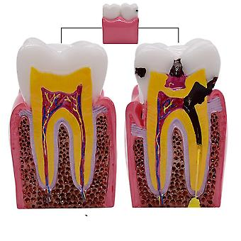 1pc 6 Times Dental Caries Comparsion Models- Tooth Decay Model For Dental Study