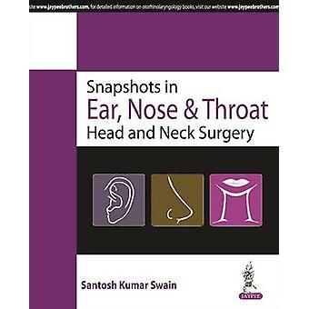 Schnappschüsse im Ohr - Nasen- und Halskopf- und Halschirurgie von Santosh Kum