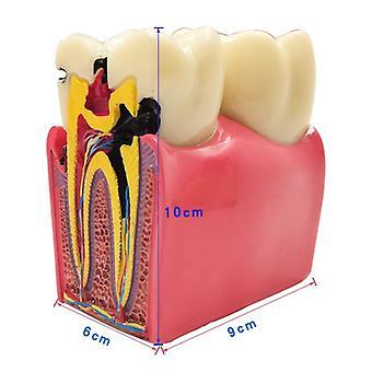 Dental Teeth Model, Caries Comparation, Study Denture Tooth Models, Dentist