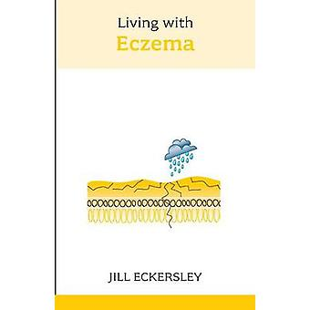 Living with Eczema by Jill Eckersley - 9781847090119 Book