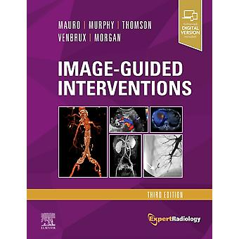 ImageGuided Interventions by Matthew A Mauro
