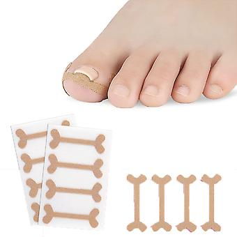 4 Pack Toe Nail Groove Foot Nail Orthodontic Device Thumb Nail Patch Quick Pedicure Toe Nail Deformation Recover