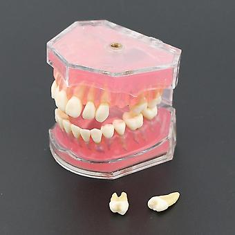 Dental Standard Model With Removable Teeth Dental Study Teach Teeth Model