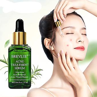 Anti Acne, Pimple, Scar Remover - Moisturizing, Whitening Skin Care, Facial