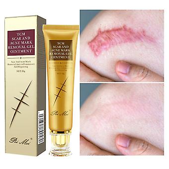 Acne Scar Removal Gel Face Pimples Stretch Marks Cream