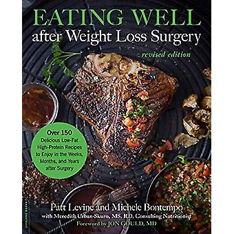 Eating Well after Weight Loss Surgery (Revised) - Over 150 Delicious L