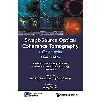 Tomographie à cohérence optique balayé-Source: Un Atlas de couleur: deuxième édition