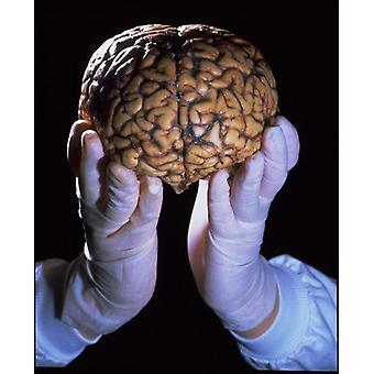 Ihmisaivot. Ruutupohjan tulostus. Ihmisaivot. Hansikaskäsillä on terveet aivot, jotka näkyvät edessä.