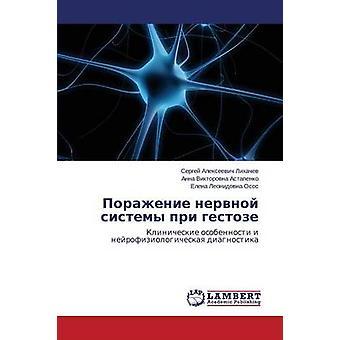 Porazhenie Nervnoy Sistemy Pri Gestoze by Likhachev Sergey Alekseevich