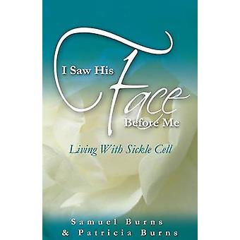 I Saw His Face Before Me  Living with Sickle Cell Anemia by Burns & Samuel a.