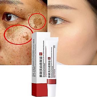 Caraele Effective Whitening Freckle Cream Remove Melasma Acne Spot Pigment Melanin Dark Spots Pigmentation Moisturizing Gel Skin Care