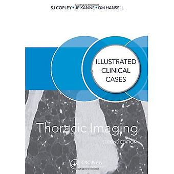 Thorax Imaging: Illustrert kliniske tilfeller, Second Edition