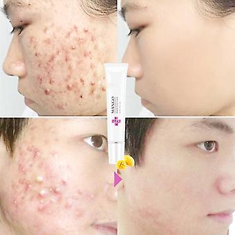 Anti Acne Spots Treatment Scar Blackhead Cream Shrink Pores Whitening