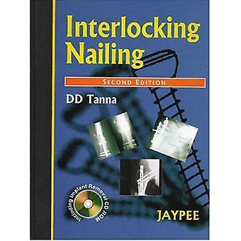 Interlocking Nailing (2nd Revised edition) by D. D. Tanna - 978818061