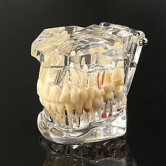 歯学用1ピース大人用歯科用樹脂修復モデル 歯科歯学ツール歯科検査室 透明モデル