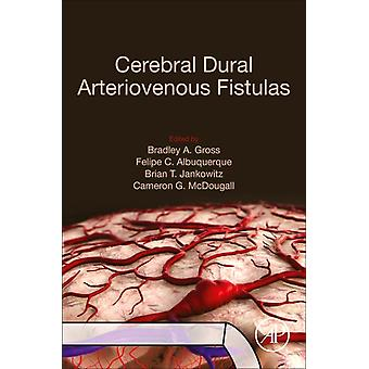 Cerebrale Dural Arteriovenous Fistulas door Edited by Bradley A Gross & Edited by Felipe C Albuquerque & Edited by Brian T Jankowitz & Edited by Cameron G Mcdougall