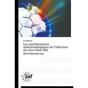 Les manifestations ophtalmologiques de l infection au virus west nile por KAHLOUNR