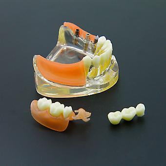Zubný implantát reštaurátorské zuby Model Odnímateľný most zubné náhrady Demo