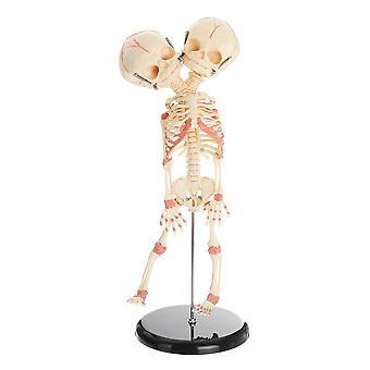 Double Head Baby Anatomy Skull Skeleton Anatomical Brain Anatomy Education Medical Model