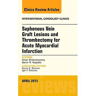 Saphenous Vein Graft Lesions and Thrombectomy for Acute Myocardial Infarction, An Issue of Interventional Cardiology...