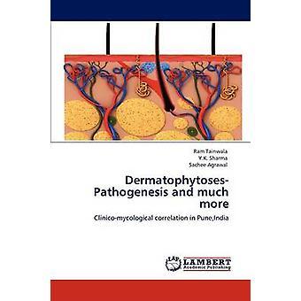 DermatophytosesPathogenesis and much more by Tainwala & Ram