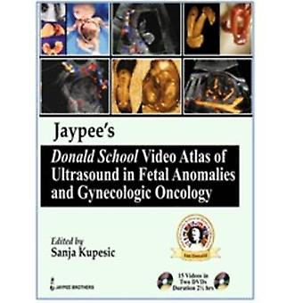 Jaypees Donald School Video Atlas of Ultrasound in Fetal Anomalies and Gynecologic Oncology by Sanja Kupesic