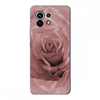 Schale für Xiaomi Mi 11 Aus Weich Silikon 1 Mm, Rosa in Der Farbe Pastell