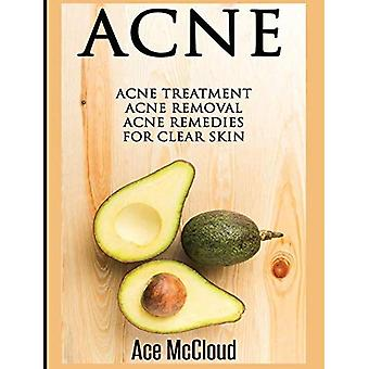 Acne: Acne Treatment: Acne Removal: Acne Remedies for Clear Skin (Acne Skin Care� Treatments from Diet & Medical)