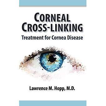 Corneal Cross-Linking: Treatment for Cornea Disease