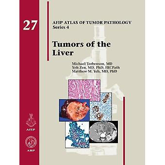 Tumors of the Liver by Michael Torbenson & Yoh Zen & Matthew M Yeh