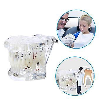 Hot Sale Dental Implant Oral Health Care Science Dental Disease Teaching Study|Teeth Whitening
