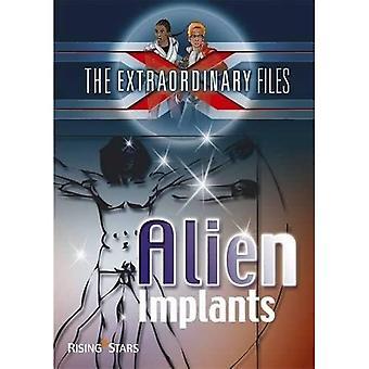 Extraordinary Files: Alien Implants (Extraordinary Files Series)