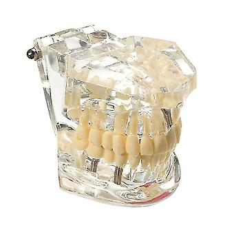 1 pièce Adulte Modèle de restauration de résine dentaire pour les outils de dentiste d'étude des dents