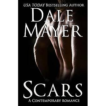 Scars by Mayer & Dale