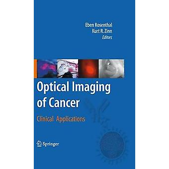 Optical Imaging of Cancer by Edited by Eben Rosenthal & Edited by Kurt R Zinn