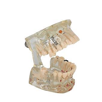 المفقودين الأسنان شفافة علم الأمراض الأسنان نموذج