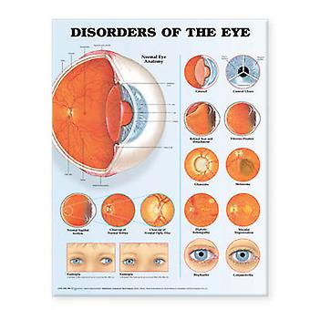 Disorders of the Eye Anatomical Chart by Prepared for publication by Anatomical Chart Company