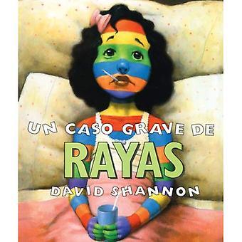 FNs Caso grav de Rayas = en dårlig tilfelle av striper