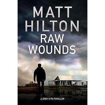 Raw Wounds by Matt Hilton - 9780727893314 Book