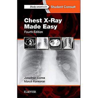 Chest X-Ray helpoksi, 4e