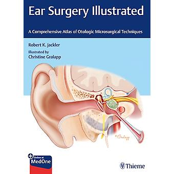 Ear Surgery Illustrated  A Comprehensive Atlas of Otologic Microsurgical Techniques by Robert Jackler