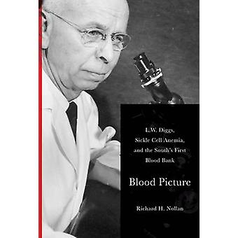 Blood Picture - L.W. Diggs - Sickle Cell Anemia - and the South's Firs