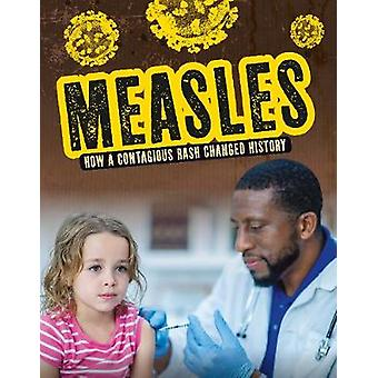 Measles - How a Contagious Rash Changed History by Mark K. Lewis - 978