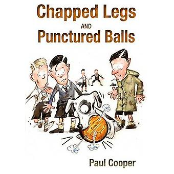 Chapped Legs and... Punctured Balls - Give Us Back Our Game by Paul Co
