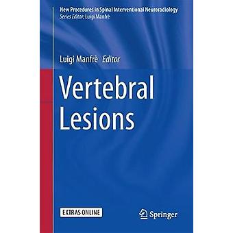 Vertebral Lesions by Edited by Luigi Manfre