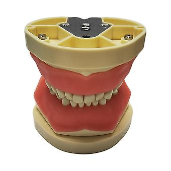 שיניים מודל שיניים, בורג-in הדגמה שן מסטיק קשה רך