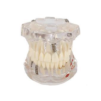 Gjennomsiktig sykdom Dental Implantat Tenner Modell