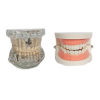Dental Model Teeth Implant Restoration Bridge Teaching Study Medical Science