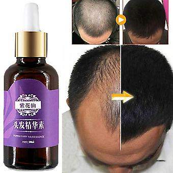 20ml-hair Loss Treatment Natural, No-side Hair Grow Oil, Hair Regrowth