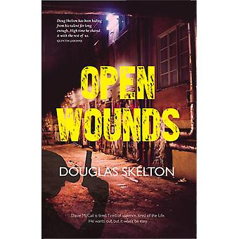 Open Wounds by Douglas Skelton - 9781910745335 Book